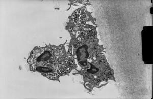 view Polymorphonuclear leucocytes - TEM