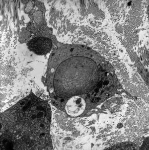 view Stromal granulocyte with large lamellar body