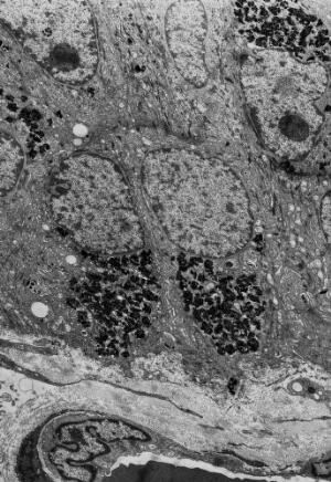 view Pigmented epithelium - TEM