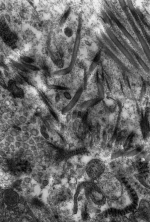 view Intercellular matrix degradation