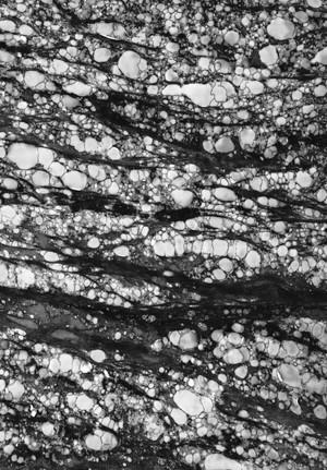 view Stromal vacuolation in cornea