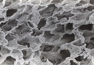 view SEM human alveoli,low power, stereoscopic,RH