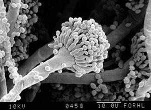 view Aspergillus fumigatus, conidia, close-up SEM