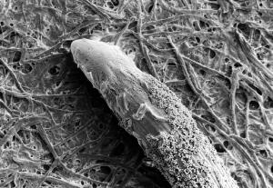 view SEM Phytophthora spores on rye grass root