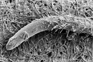 view SEM Pythium spores on root tip