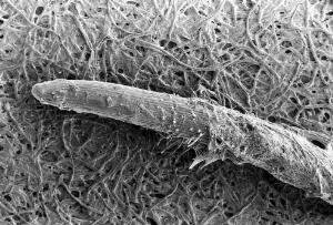 view SEM Pythium spores and hyphae on root tip