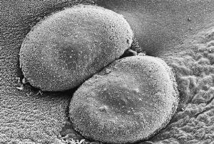 view SEM of Streptococcus pneumoniae colony