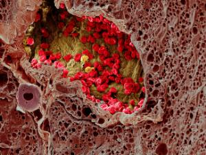 view Blood vessel in a melanoma, SEM