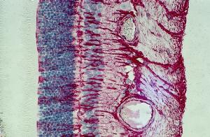 view Beginnings of retinal scarring