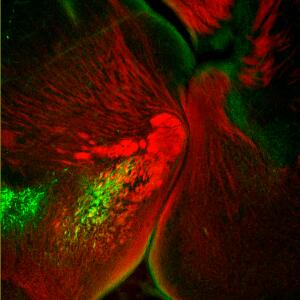 view Catecholaminergic neurons in the brain