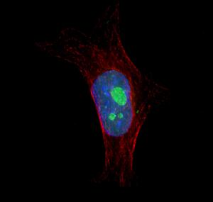 view HeLa cell showing nuclei and nucleoli
