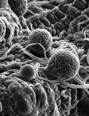 view Malaria parasites in a mosquito midgut