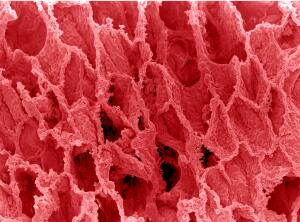view SEM alveoli in the lung.