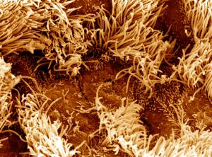 view SEM bronchial surface of unhealthy lung