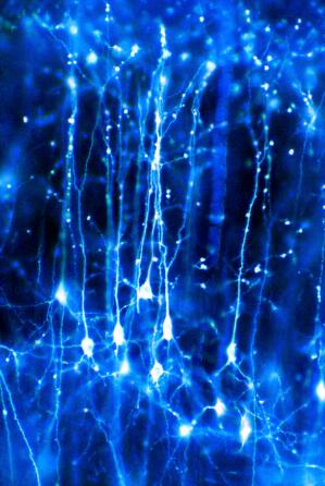 view Neurons in the brain