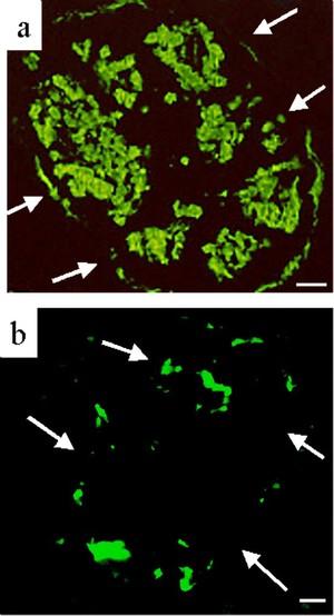 view Amyloid deposition in Type II diabetes pancreas islets