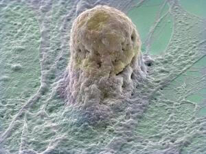 view Human embryonic stem cell (gold) growing on a layer of supporting cells (fibroblasts). Stem cells are derived from very early embryos and can either be grown to stay in their original state or triggered to form almost any type of human cell. The fibroblasts provide special factors that maintain the stem cells in their original state. The stem cell appears to be grasped by the underlying fibroblast. Stem cell research could lead to cures for many diseases such as Parkinson's disease, Alzheimer's and diabetes, where a patient's cells are damaged or absent.