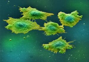 view Human colon cancer cells in culture. Colon cancer is the third most common cancer in Britain. People are more likely to develop this cancer if they eat a diet high in animal fats.