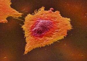 view Human colon cancer cells