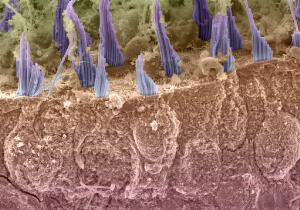 view Hair cells in the utricle