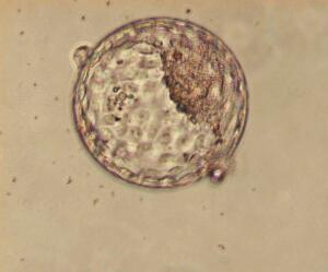 view Human blastocyst within the zona pellucida