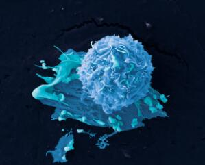 view Breast cancer cells