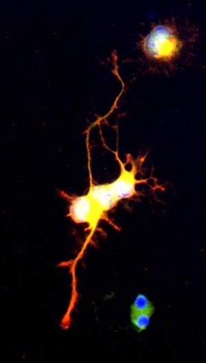view Differentiating neuroblast