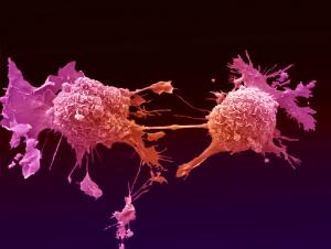 view Lung cancer cells