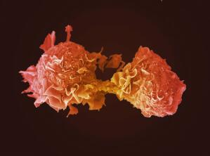 view Lung cancer cell dividing