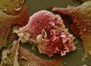 view Lung cancer cells.