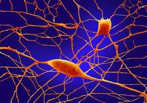 view Purkinje neurons in culture