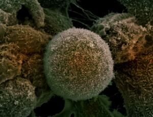 view Prostate cancer cells