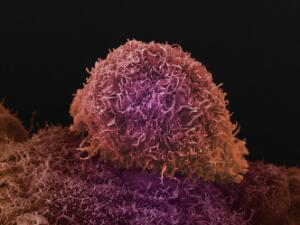 view Prostate cancer cell