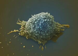 view Lung cancer cell.