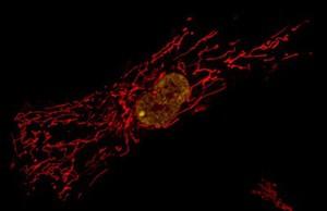 view Primary human fibroblast