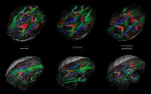 view White matter fibres of the uncinate fasciculus