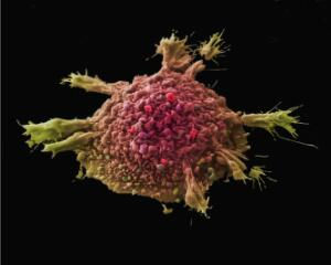 view Lung cancer cell