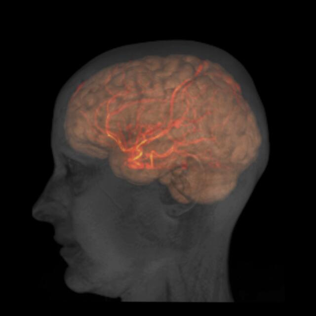 head brain and large arteries of a healthy female adult