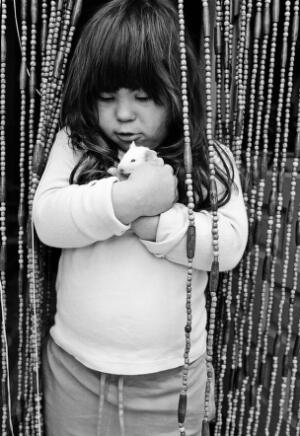view Young girl with Down's syndrome