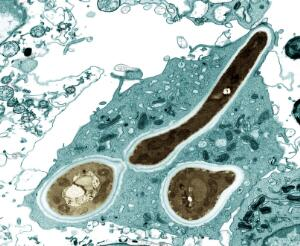 view Macrophage infected with Candida yeast spores, TEM