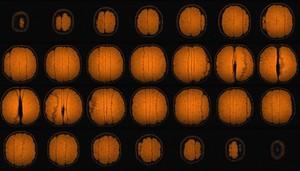 view Mandarin orange, sagittal view, MRI