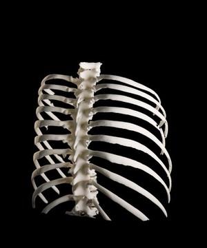 view Ribcage, Hodgkin lymphoma patient, 3D printed nylon