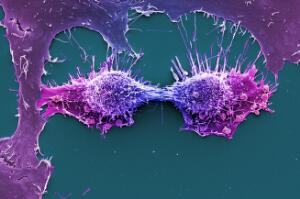 view HeLa cells, immortal human epithelial cancer cell line, SEM