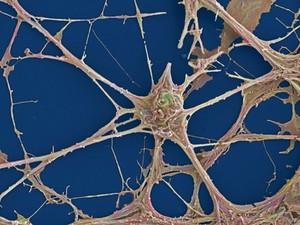 view Rat neurones, SEM