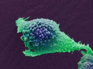 view Prostate cancer cell, SEM