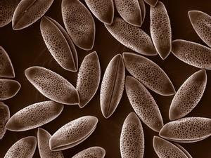 view Pollen grains, Agapanthus, SEM