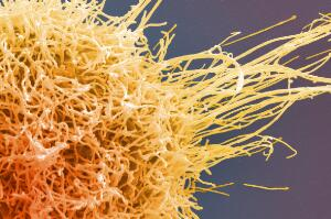 view HeLa cell, immortal human epithelial cancer cell line, SEM