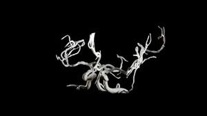 view Brain blood vessels, suspected meningitis, 3D printed nylon