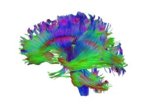 view Healthy human adult brain viewed from the side, tractography