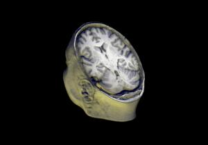 view Healthy adult human head and brain viewed from behind, MRI